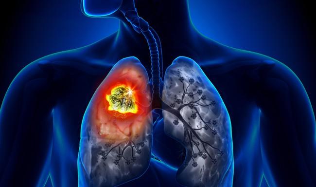 Người đàn ông được phát hiện ung thư phổi sau 10 ngày ho khan, cảnh báo dấu hiệu sớm của bệnh phải cẩn trọng - Ảnh 1.
