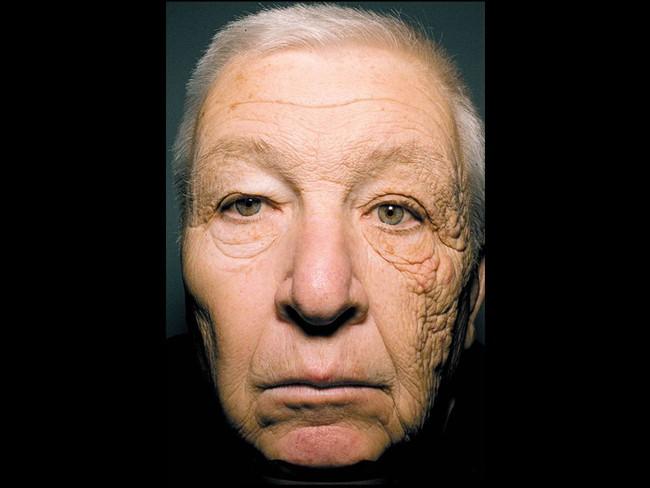 Nhìn những hình ảnh này mới thấy chính xác những thiệt hại của ánh nắng mặt trời gây ra cho làn da của bạn - Ảnh 2.