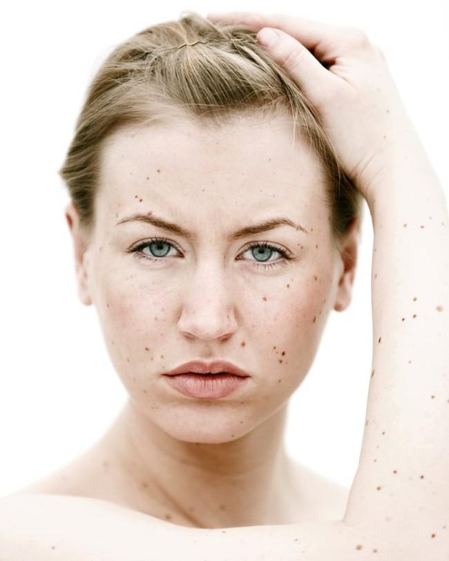 Nhìn những hình ảnh này mới thấy chính xác những thiệt hại của ánh nắng mặt trời gây ra cho làn da của bạn - Ảnh 5.