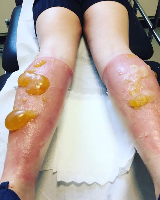 Nhìn những hình ảnh này mới thấy chính xác những thiệt hại của ánh nắng mặt trời gây ra cho làn da của bạn - Ảnh 3.