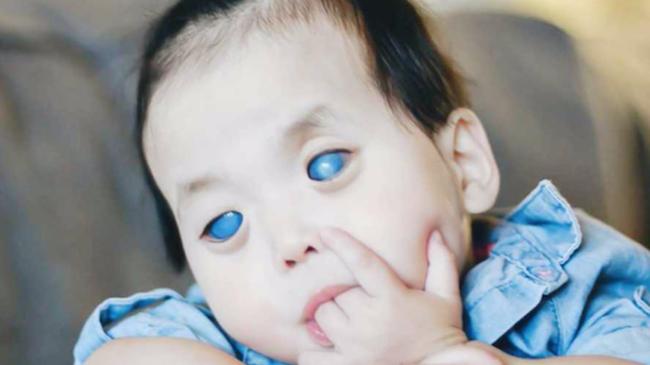 Bé gái với đôi mắt kỳ lạ xanh thăm thẳm như đại dương nhưng lại ẩn chứa một sự thật đau lòng đằng sau - Ảnh 1.