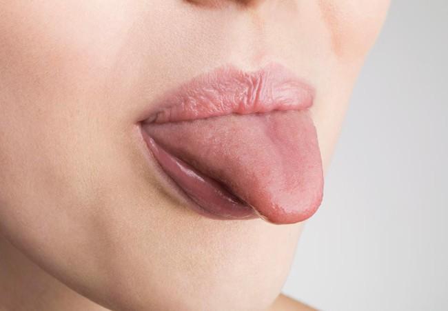 Đặc điểm này trên lưỡi có thể là cơ sở để xác định 1 người có nguy cơ bị bệnh ung thư nguy hiểm nhất - Ảnh 1.