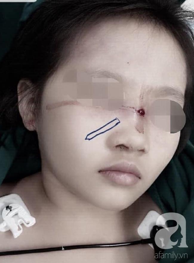Tai nạn kinh hoàng cận Tết: Cầm bút chì chơi rồi vấp ngã, bé gái 6 tuổi bị đâm xuyên từ mũi đến hốc mắt - Ảnh 1.