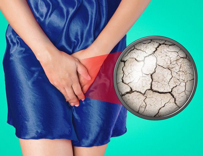 8 vấn đề sức khỏe ở vùng nhạy cảm mọi phụ nữ đều có thể gặp phải và cách khắc phục - Ảnh 4.
