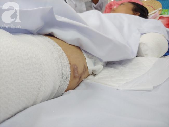Mẹ mới sinh phải cắt cụt tứ chi sau khi bị áp xe vú: Bác sĩ sản khoa tiết lộ thông tin bất ngờ - Ảnh 7.