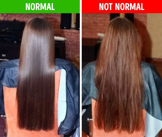 Nếu gặp các biểu hiện này ở tóc, hãy gặp bác sĩ vì rất có thể có điều gì đó không ổn trong cơ thể - Ảnh 2.