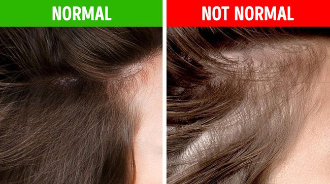 Nếu gặp các biểu hiện này ở tóc, hãy gặp bác sĩ vì rất có thể có điều gì đó không ổn trong cơ thể - Ảnh 5.