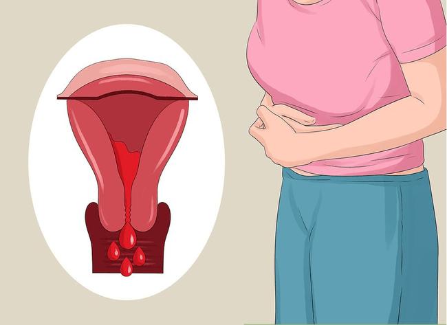 Cô gái người Úc mắc bệnh lạc nội mạc tử cung khiến kỳ đèn đỏ mỗi tháng trở thành một nỗi ám ảnh - Ảnh 3.