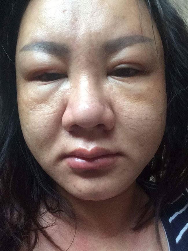 """Cô gái Việt xinh đẹp bỗng phù nề khi mang bầu, người quen không nhận ra, vào phòng đẻ bị chê """"xúc phạm người nhìn"""" - Ảnh 3."""