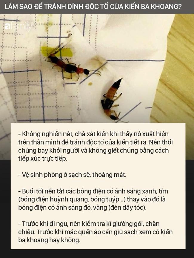 Độc tố của kiến ba khoang mạnh gấp 12-15 lần rắn hổ mang: Nhận biết kiến ba khoang và phòng tránh chất độc của chúng dính vào da - Ảnh 6.