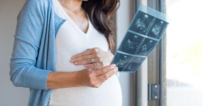 Bác sĩ sản khoa tiết lộ một loạt tác nhân gây dị tật thai nhi, các mẹ bầu rất cần lưu ý - Ảnh 2.