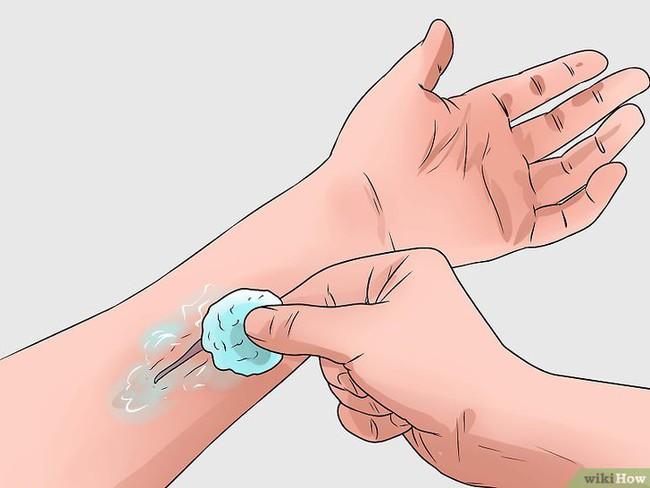 Bị kiến ba khoang đốt thì nên bôi thuốc gì cho đỡ các triệu chứng và nhanh khỏi nhất? - Ảnh 7.