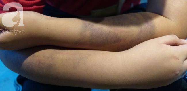 Đôi tay thâm tím của bé K.