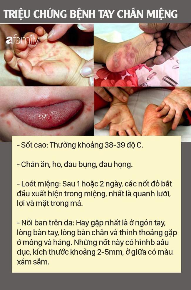 Bệnh tay chân miệng có dấu hiệu gia tăng vào cuối năm, cha mẹ đừng bỏ qua các các triệu chứng bệnh tay chân miệng - Ảnh 3.