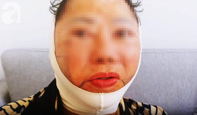 Từ vụ tử vong sau khi căng da mặt tại BV thẩm mỹ: Những chị em bệnh này sẽ có nguy cơ biến chứng cao - Ảnh 1.