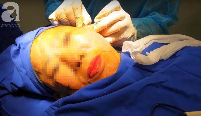 Từ vụ tử vong sau khi căng da mặt tại BV thẩm mỹ: Những chị em bệnh này sẽ có nguy cơ biến chứng cao - Ảnh 2.