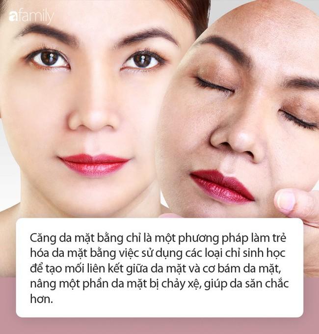 Trong các phương pháp căng da mặt, căng da mặt bằng chỉ dù nhẹ nhàng hơn cả cũng có rủi ro biến chứng đi kèm! - Ảnh 3.
