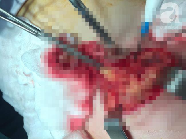 Hãi hùng cảnh ngực người phụ nữ bị lở loét, hoại tử nặng nề vì tự tiện dùng lá thuốc đắp trị ung thư - Ảnh 3.