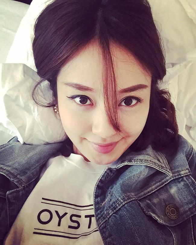 """Mi Vân gây sốc khi tiết lộ bị hỏng một bên mắt, đồng thời nhắc cả đến Wanbi Tuấn Anh khiến ai nấy giật mình vì 2 người trong MV """"Đôi mắt"""" đều mắc bệnh về mắt - Ảnh 3."""