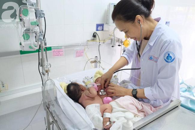 TP.HCM: 18 bác sĩ phẫu thuật tách hai bé gái song sinh dính nhau phần gan, nhỏ nhất từ trước đến nay - Ảnh 2.