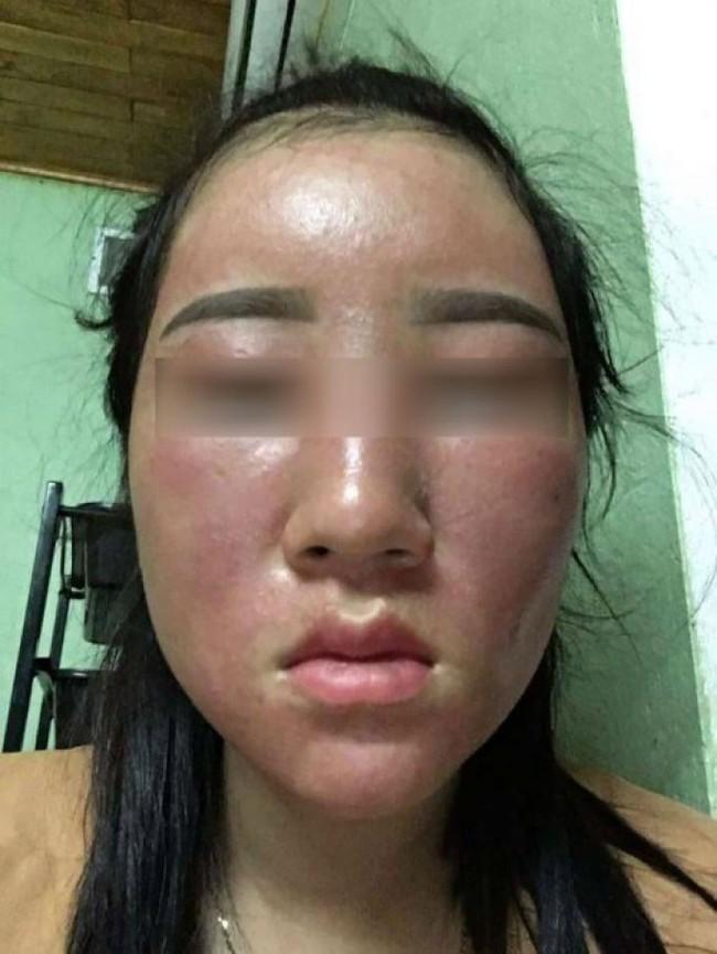 """Tự ý lột da mặt để mong sở hữu làn da đẹp theo những cách này, chị em đau khổ khi mặt bỗng """"hóa quỷ"""" - Ảnh 4."""