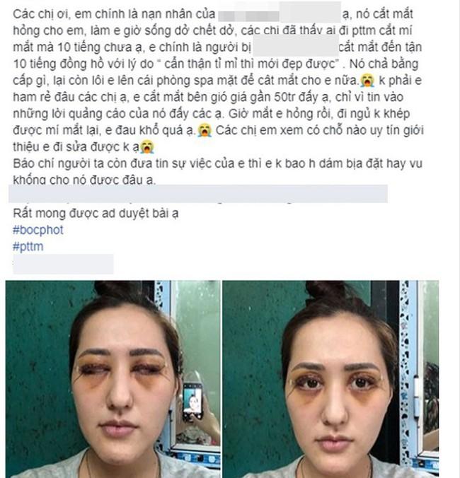 Người phụ nữ kêu cứu sau khi đi cắt mí mắt bị hỏng: Đây là những điều bạn cần nhớ trước khi làm phẫu thuật này - Ảnh 1.