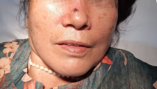 Nghĩ nốt sùi trên sống mũi là nốt ruồi nên không đi khám, người phụ nữ phải đối mặt với bệnh ung thư - Ảnh 1.