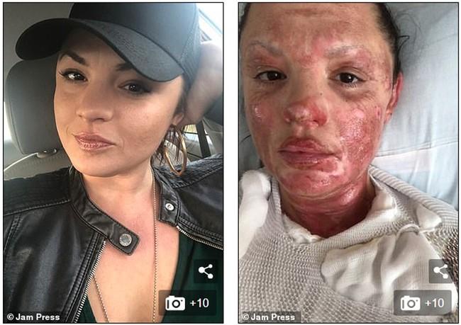 Đi ăn nướng BBQ tại nhà bạn, người phụ nữ bị bỏng khô khiến toàn thân bong trợt phải ghép da - Ảnh 1.