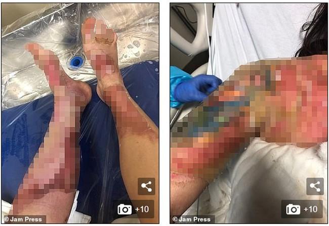 Đi ăn nướng BBQ tại nhà bạn, người phụ nữ bị bỏng khô khiến toàn thân bong trợt phải ghép da - Ảnh 3.