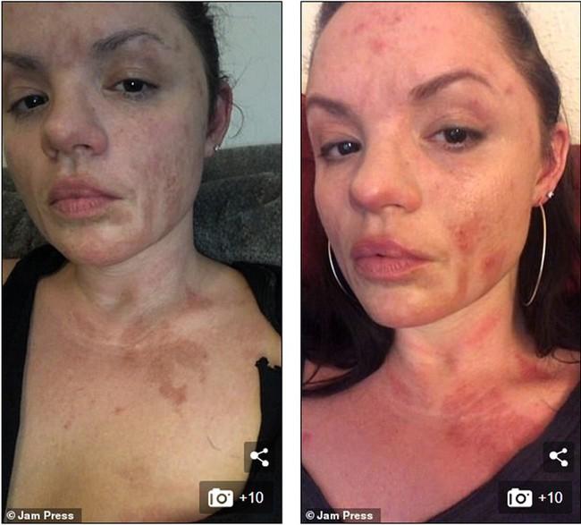 Đi ăn nướng BBQ tại nhà bạn, người phụ nữ bị bỏng khô khiến toàn thân bong trợt phải ghép da - Ảnh 6.