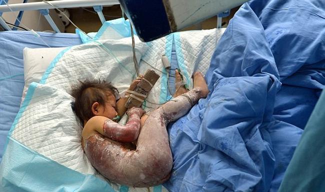 Cậu bé 6 tuổi chết thảm vì bị bố ruột ép uống nước sôi sau khi nghi ngờ trong người con có... quỷ! - Ảnh 1.