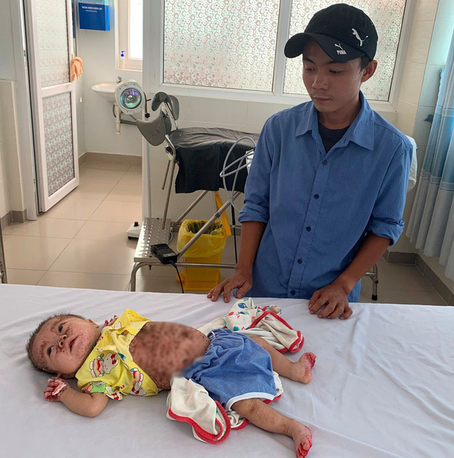 Xót xa bé gái 5 tháng tuổi bị viêm da bội nhiễm nặng, lở tróc khắp người vô cùng đau đớn - Ảnh 1.