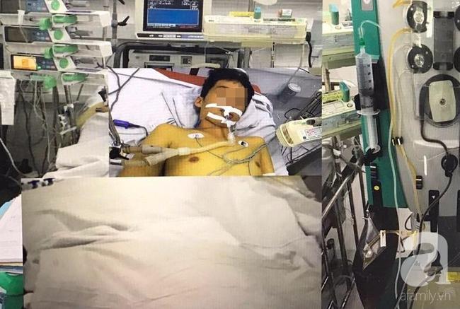 """TP.HCM: Bé trai bị sốt xuất huyết rất nặng, chỉ còn """"1% hi vọng sống"""" được cứu sau hơn 2 tháng điều trị - Ảnh 1."""