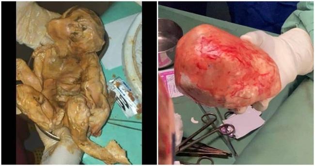Đau bụng âm ỉ mãi không khỏi, người phụ nữ đi khám và kinh hoàng tột độ khi biết trong bụng mình là thai nhi đã chết 15 năm - Ảnh 2.
