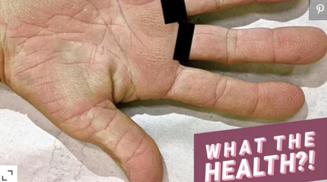 Cảnh báo: Nếu bạn xuất hiện dấu hiệu này ở lòng bàn tay, rất có thể đã bị ung thư phổi! - Ảnh 1.