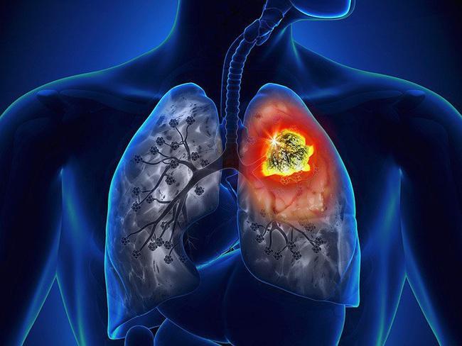 Cảnh báo: Nếu bạn xuất hiện dấu hiệu này ở lòng bàn tay, rất có thể đã bị ung thư phổi! - Ảnh 3.