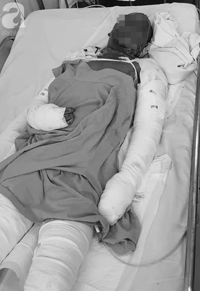 Nhà bốc cháy lúc đang ngủ, hai vợ chồng ở Lâm Đồng chỉ kịp cứu 3 con rồi hóa thành 'ngọn đuốc sống' - Ảnh 2.