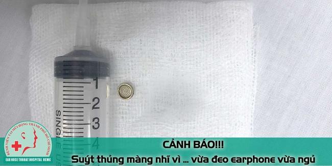 Huy hữu: Bệnh nhân nam suýt thủng màng nhĩ vì đeo tai nghe nghe nhạc khi ngủ - Ảnh 3.