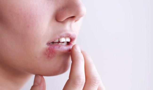 Nhầm tưởng về bệnh herpes không ít phụ nữ mắc phải - Ảnh 1.