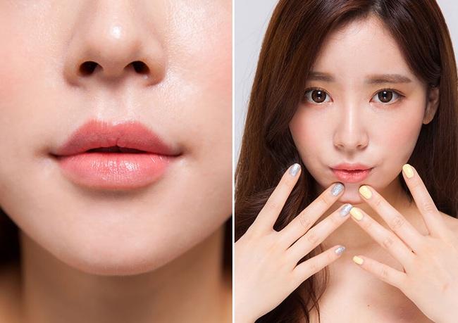 """Tạo hình môi: Chuyên gia """"bật mí"""" những phương pháp thẩm mỹ hot nhất hiện nay - Ảnh 5."""