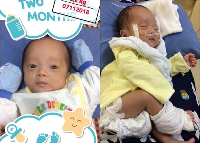 """Nhật ký 1 năm nuôi con sinh non nặng 1,3kg, đi """"nghỉ dưỡng"""" ở viện nhiều hơn ở nhà của mẹ Nghệ An - Ảnh 5."""