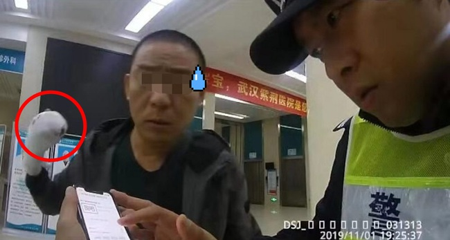Mang ngón tay đứt lìa đến bệnh viện để ghép nối mới biết đã bỏ quên nó trên taxi - Ảnh 2.