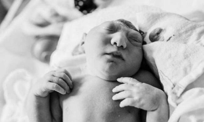 Biết tin 1 trong 2 con sinh đôi mắc chứng não phẳng, bà mẹ vẫn quyết làm điều này để cứu đứa con còn lại - Ảnh 8.