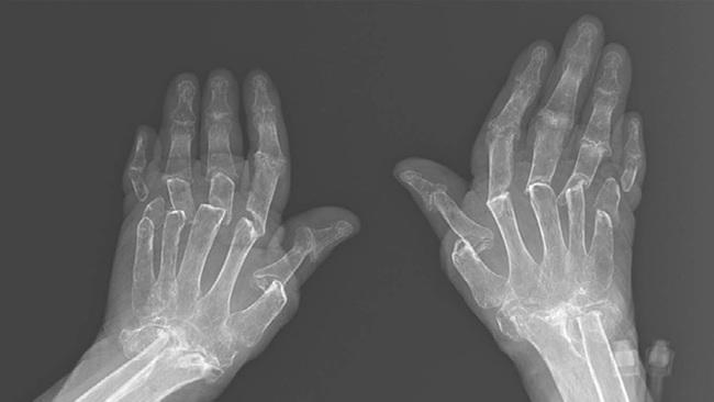 Hình ảnh chụp X-quang tiết lộ rõ thực tế bệnh nhân sống chung với bệnh viêm khớp dạng thấp khổ sở thế nào - Ảnh 1.