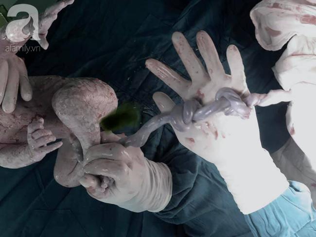TP.HCM: Bắt con khẩn cho sản phụ suy thai, bác sĩ bất ngờ phát hiện bé chào đời có dây rốn bị thắt 2 nút - Ảnh 2.