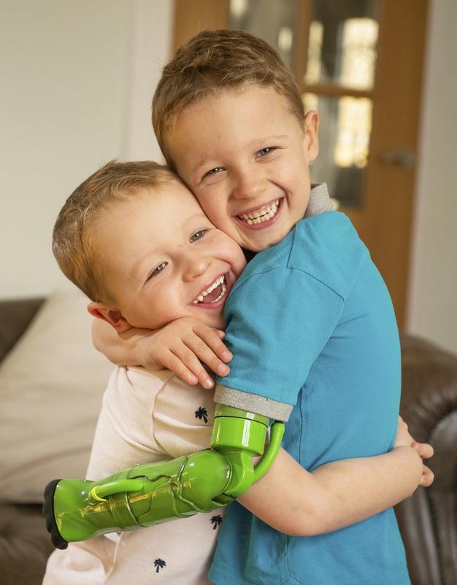 Bị dị tật bẩm sinh ở chi, bé trai 5 tuổi đã vỡ òa trong cảm xúc khi lần đầu tiên được ôm trọn vẹn em trai vào lòng  - Ảnh 1.