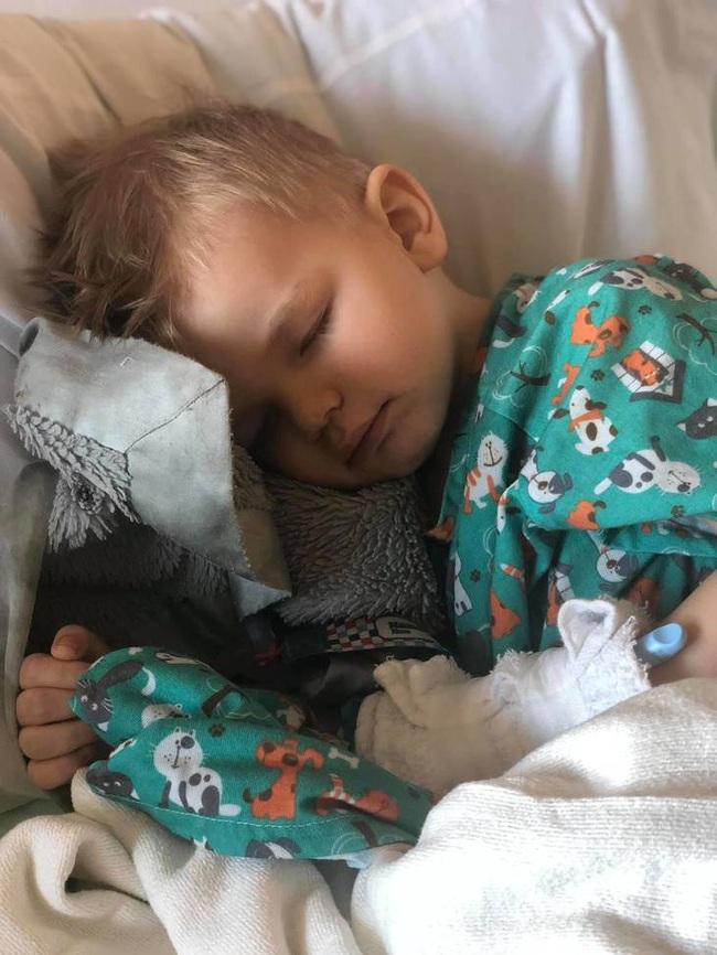 Bà mẹ lên tiếng cảnh báo khi con trai phải phẫu thuật 2 lần để gắp bỏng ngô sau khi bị nghẹn - Ảnh 1.