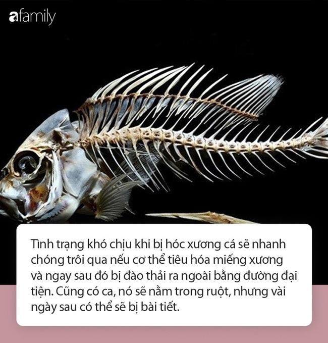 Hóc xương cá đừng có dại mà dùng thứ này chữa bệnh kẻo thiệt thân, hãy dắt túi ngay từng bước sơ cứu dưới đây! - Ảnh 2.