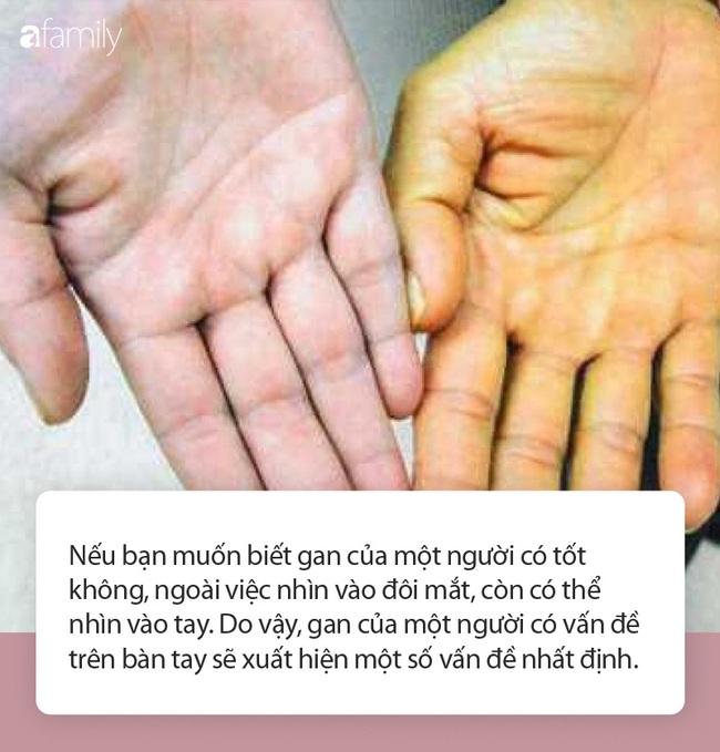 Có 3 triệu chứng này xuất hiện trên bàn tay chứng tỏ gan đang kêu cứu - Ảnh 1.