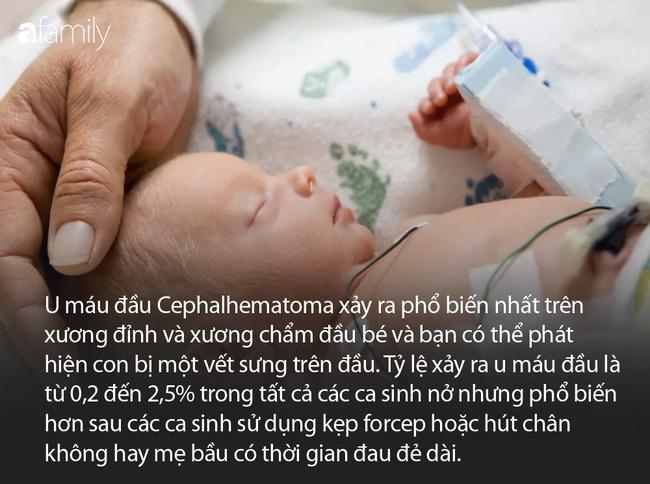 Những đặc điểm ở trẻ sơ sinh khiến nhiều cha mẹ ngạc nhiên vì khác xa tưởng tượng - Ảnh 9.